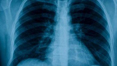 Photo of Aplicativo criado na USP identifica covid-19 a partir de raio-x do pulmão